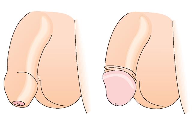 Обрезание короткой уздечки пениса